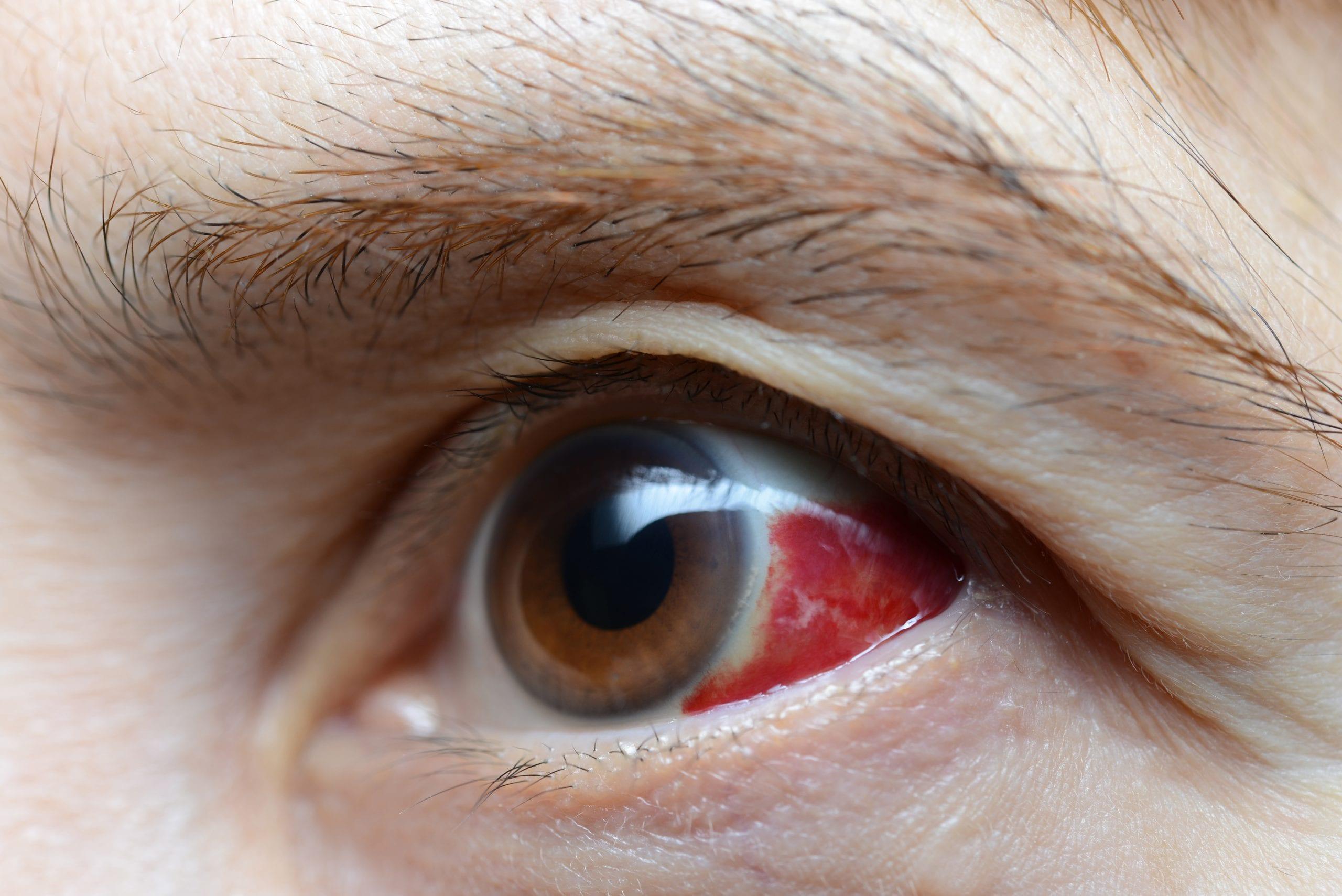 Woman with burst blood vessel in eye, closeup